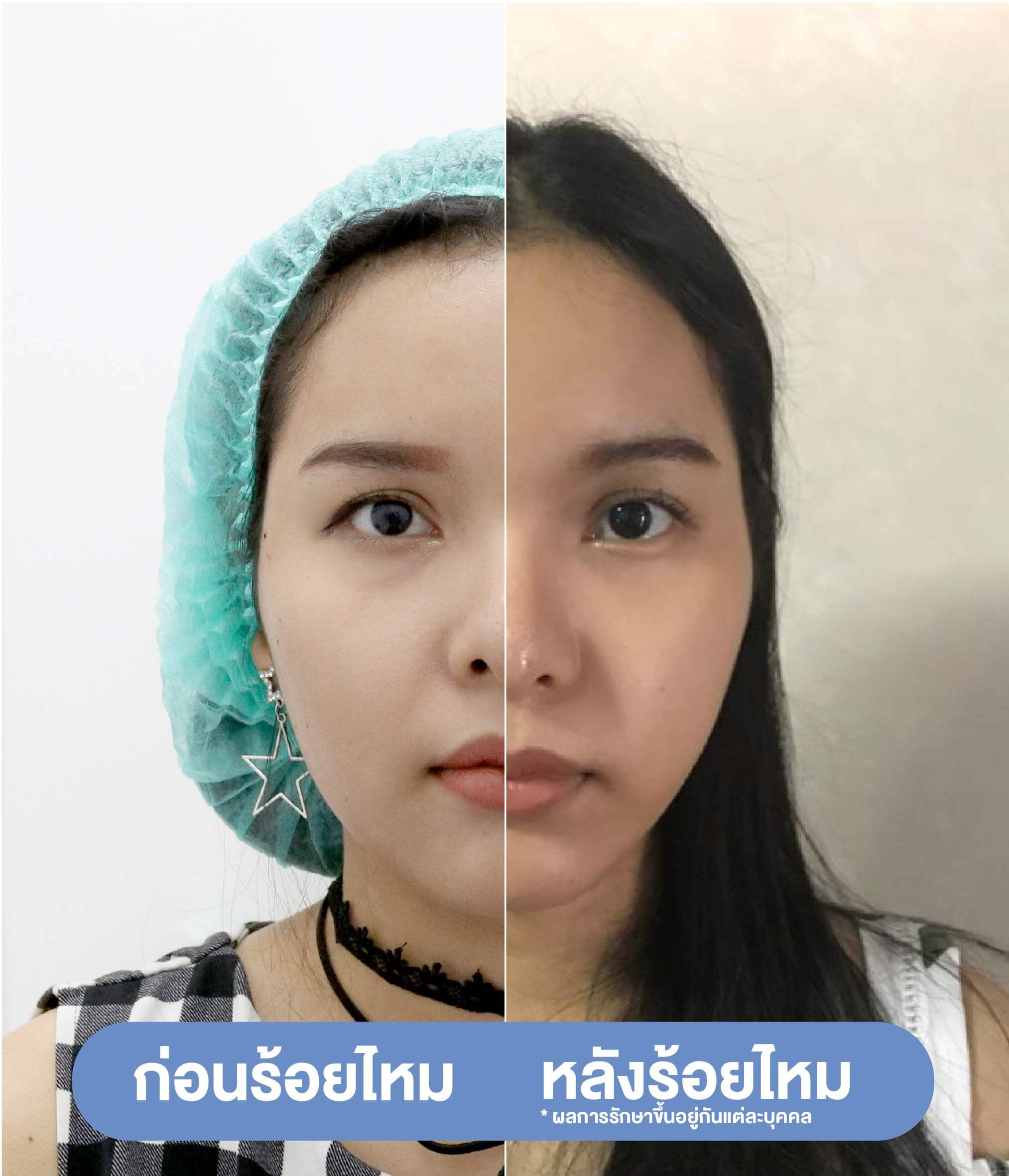 รีวิวเทียบก่อน-หลังร้อยไหม-before-after