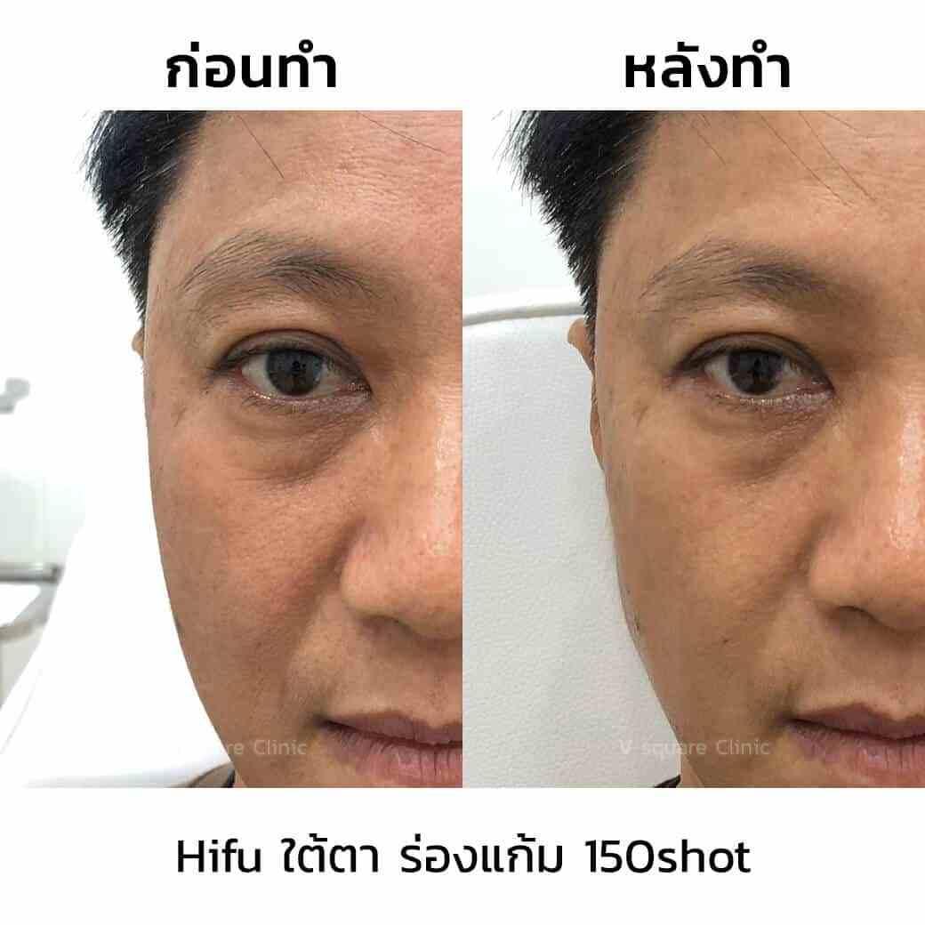 review-hifu-ใต้ตา-ร่องแก้ม-150shot