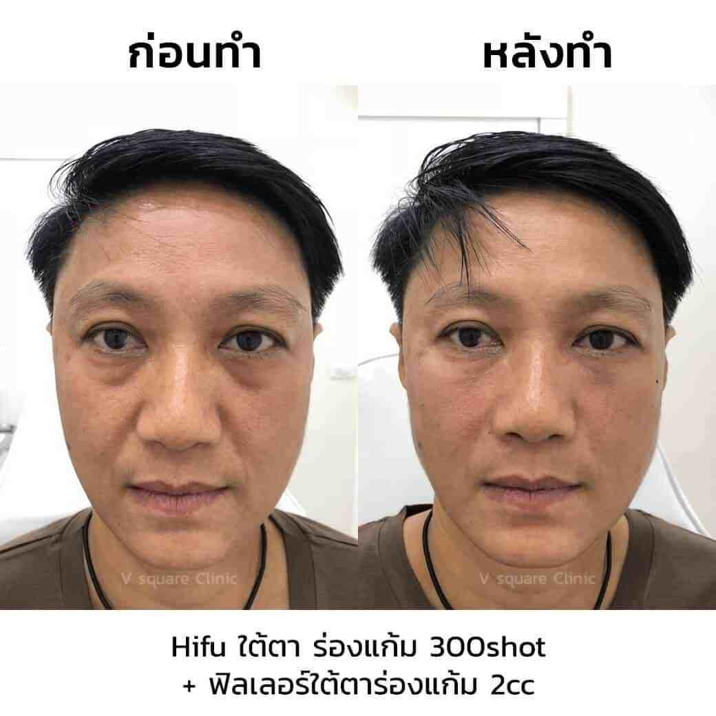 review-hifu-ใต้ตา-ร่องแก้ม-300shot-ฟิลเลอร์ใต้ตาร่องแก้ม