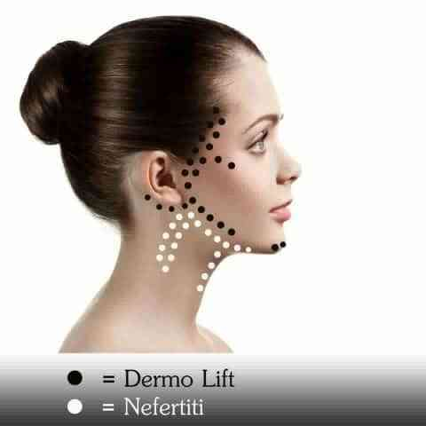 dermo-lift-nefertiti