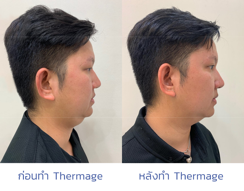 thermage คืออะไร